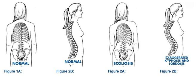 Normal Spine versus Scoliosis